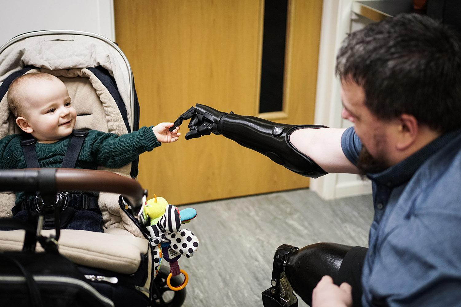 Danny gets his bionic hand